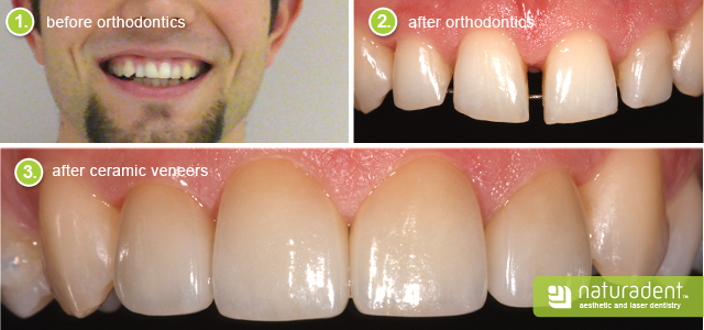 web_belso-kep_640px_before-after-veneers