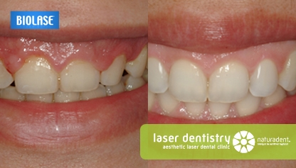 Gum removal, gum correction with laser